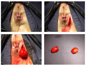 Anaalklieroperatie